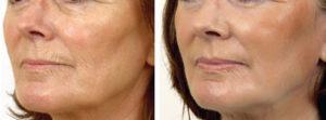 До и после озонотерапия Линия Жизни
