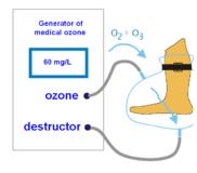 Газация кожных покровов озоно-кислородной смесью(трофические язвы)